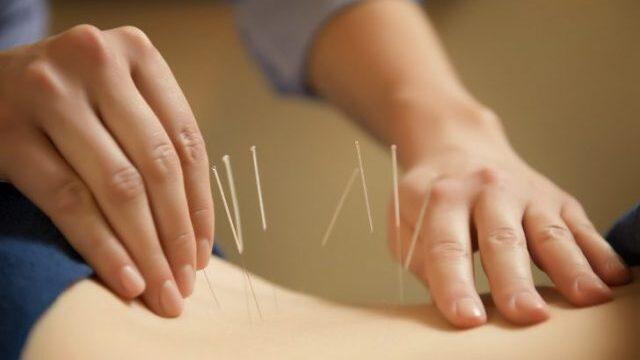 鍼 / Acupuncture