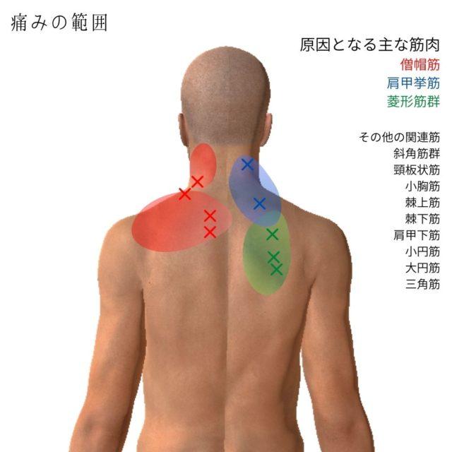 肩こりのトリガーポイントと関連痛の範囲、原因となる筋肉
