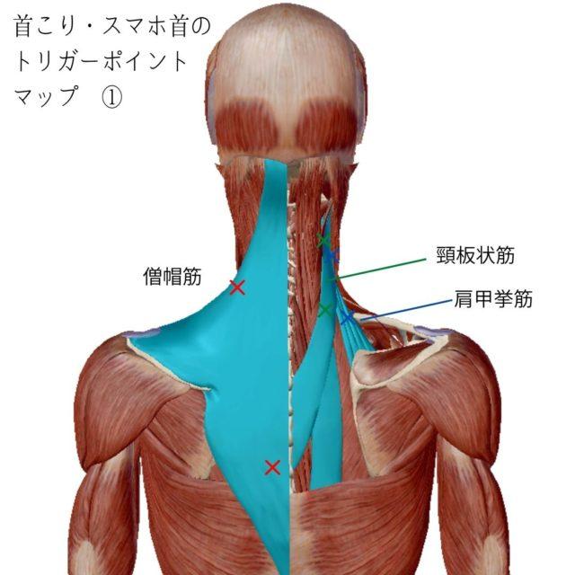首こり・スマホ首のトリガーポイントと原因となる筋肉①