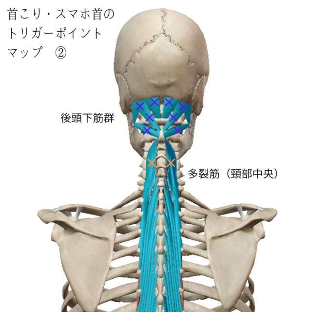 首こり・スマホ首のトリガーポイントと原因となる筋肉②
