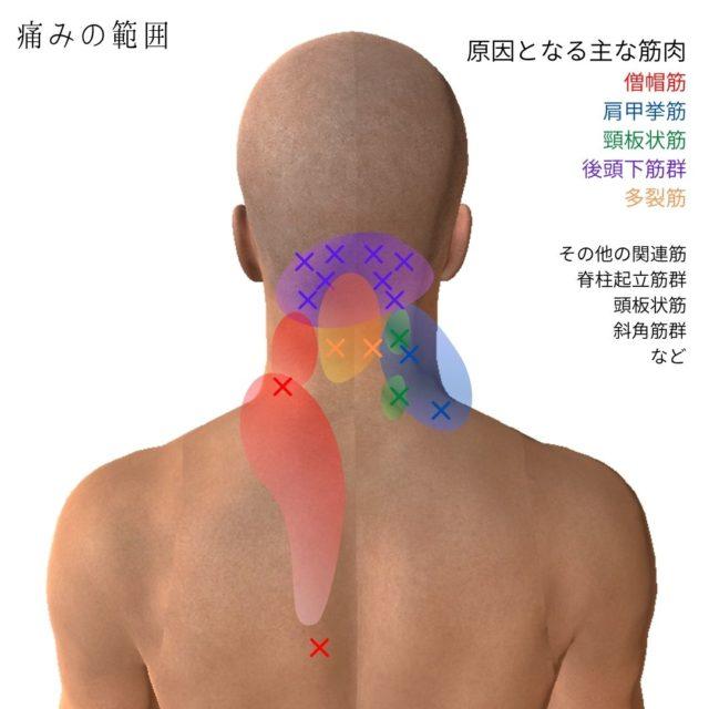 首こり・スマホ首のトリガーポイントと原因となる筋肉③