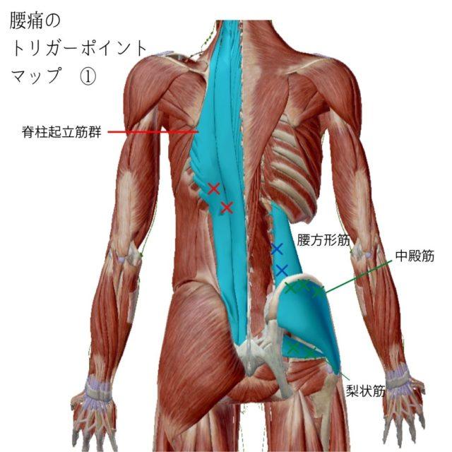 腰痛のトリガーポイントと原因となる筋肉①