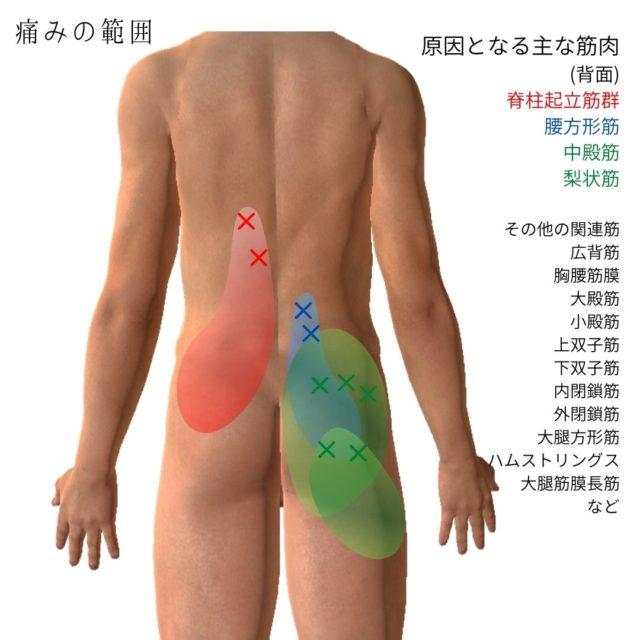 腰痛のトリガーポイントと原因となる筋肉③