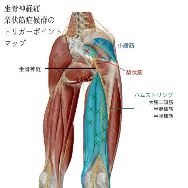 坐骨神経痛・梨状筋症候群のトリガーポイントと原因となる筋肉①