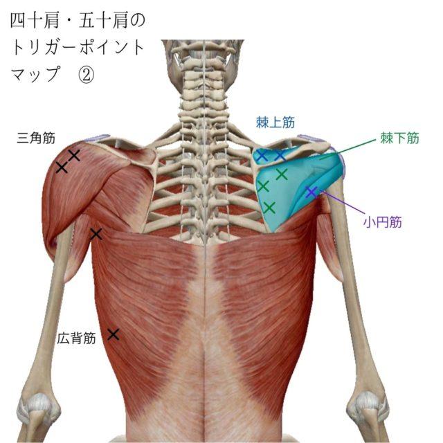 四十肩・五十肩のトリガーポイントと原因となる筋肉②
