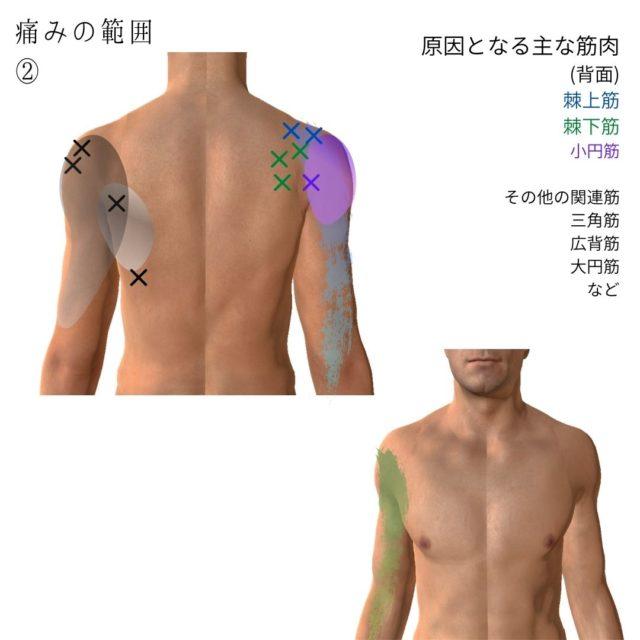 四十肩・五十肩のトリガーポイントと原因となる筋肉④