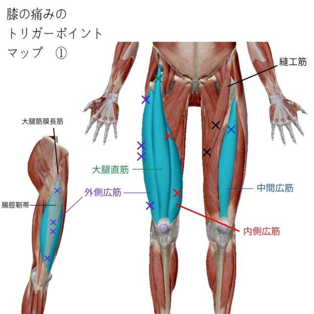 膝の痛みのトリガーポイントと原因となる筋肉①
