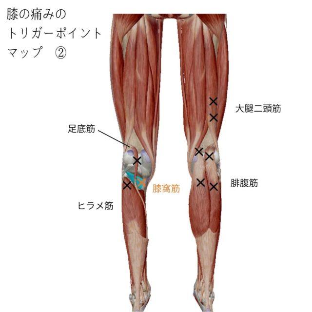 膝の痛みのトリガーポイントと原因となる筋肉②