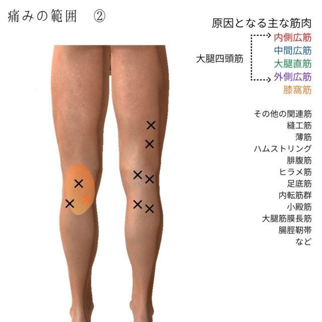 膝の痛みのトリガーポイントと原因となる筋肉④