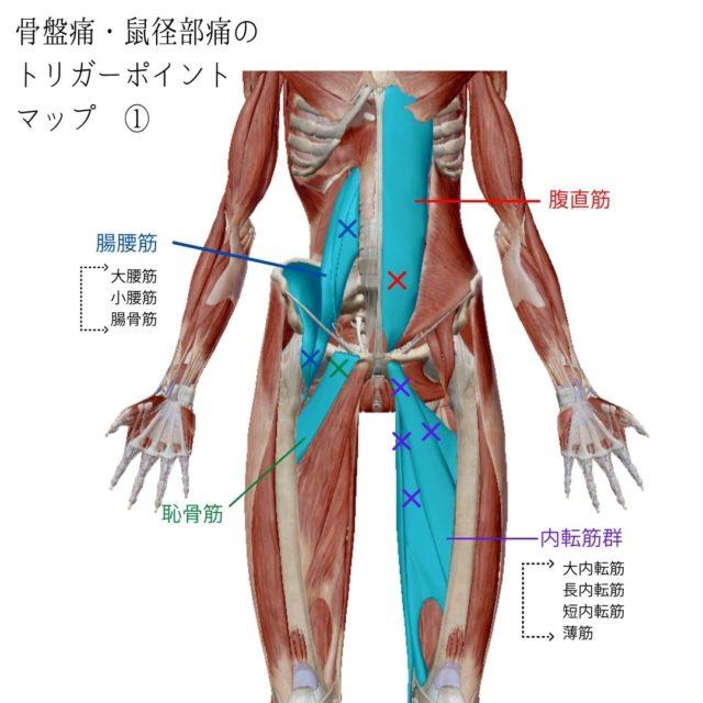 骨盤痛・鼠径部痛のトリガーポイントと原因となる筋肉①