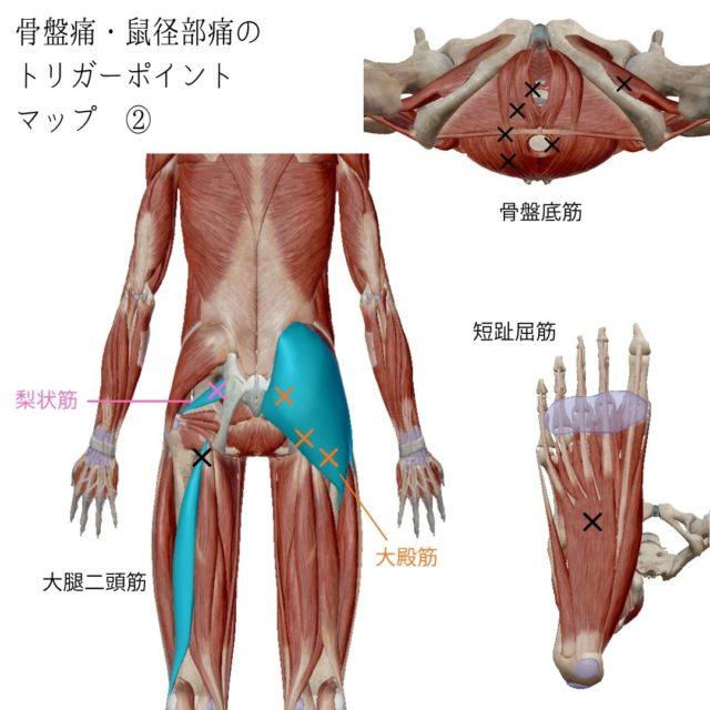 骨盤痛・鼠径部痛のトリガーポイントと原因となる筋肉②