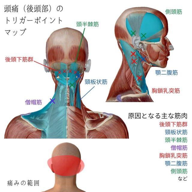 頭痛(後頭部)のトリガーポイントと原因となる筋肉