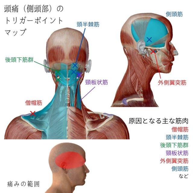 頭痛(側頭部)のトリガーポイントと原因となる筋肉