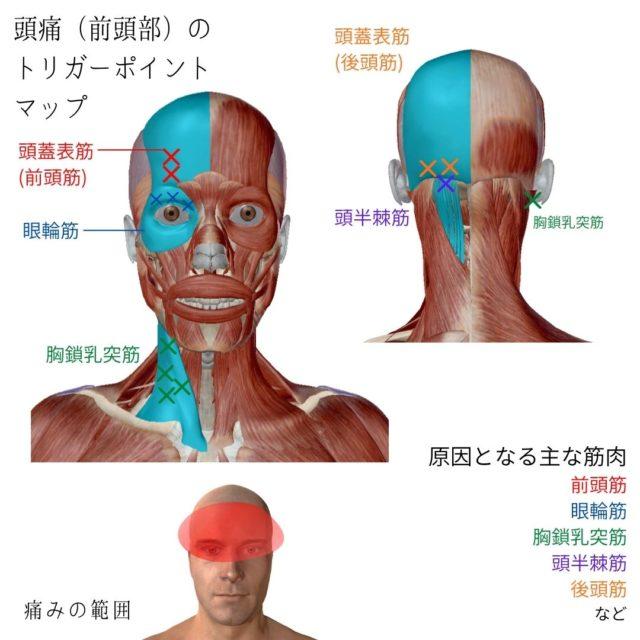 頭痛(前頭部)のトリガーポイントと原因となる筋肉