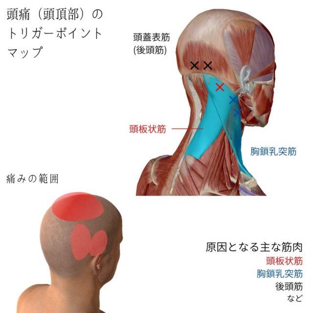 頭痛(頭頂部)のトリガーポイントと原因となる筋肉