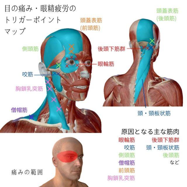 目の痛み・眼精疲労のトリガーポイントと原因となる筋肉