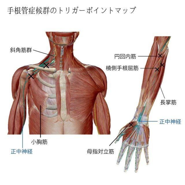 手根管症候群のツボ(トリガーポイント)と痛みの原因となる筋肉