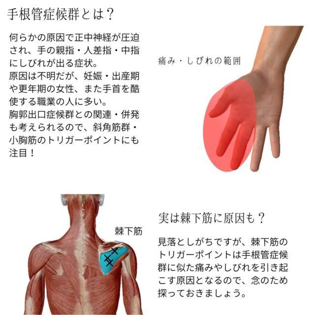 手根管症候群とは?