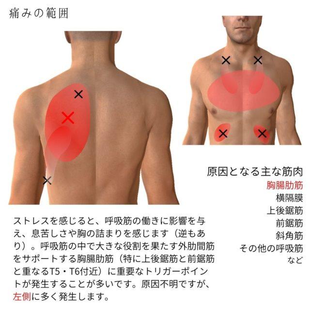ストレス・息苦しさ・胸の詰まりのトリガーポイントと原因となる筋肉②