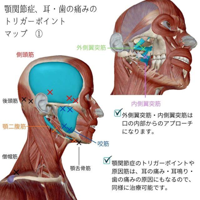 顎関節症のツボ(トリガーポイント)と痛みの原因となる筋肉①