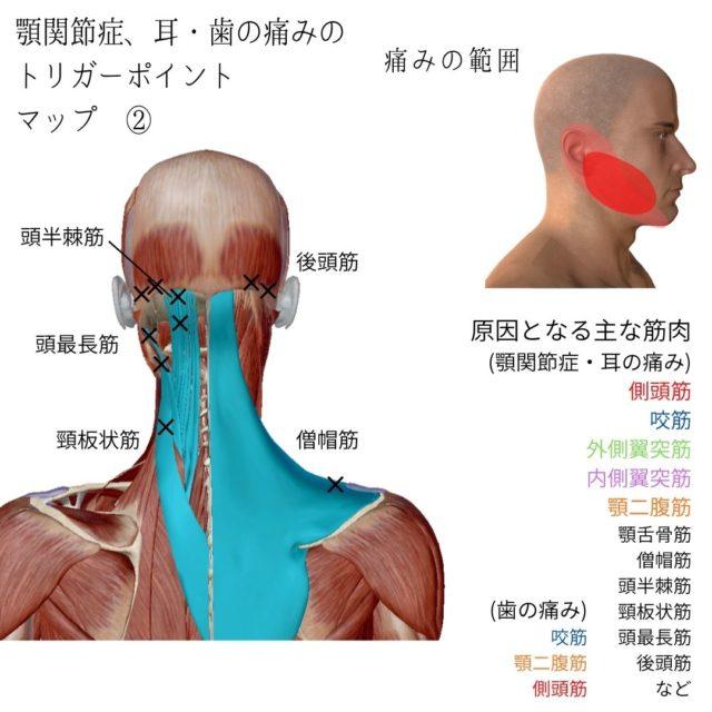 顎関節症のツボ(トリガーポイント)と痛みの原因となる筋肉②