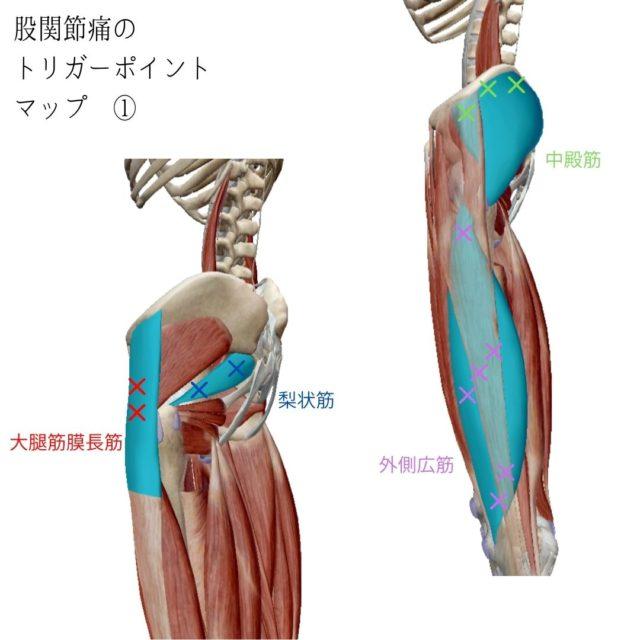 股関節痛のツボ(トリガーポイント)と痛みの原因となる筋肉①