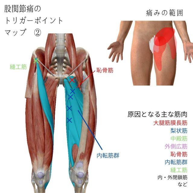 股関節痛のツボ(トリガーポイント)と痛みの原因となる筋肉②