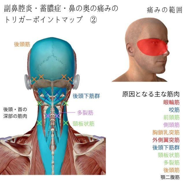 副鼻腔炎・蓄膿症・鼻の奥の痛みに効くツボ・トリガーポイントと慢性化・悪化の原因となっている筋肉②